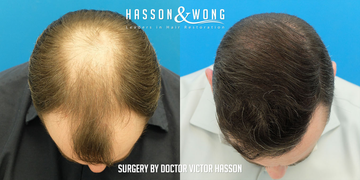 hair-restoration-before-after-7410-grafts-top-FUT.jpg
