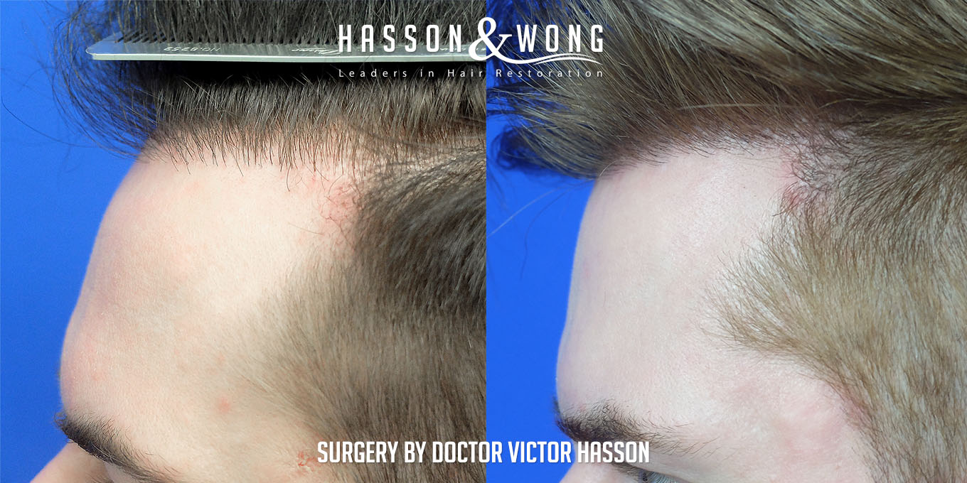 hair-restoration-surgery-before-after-20